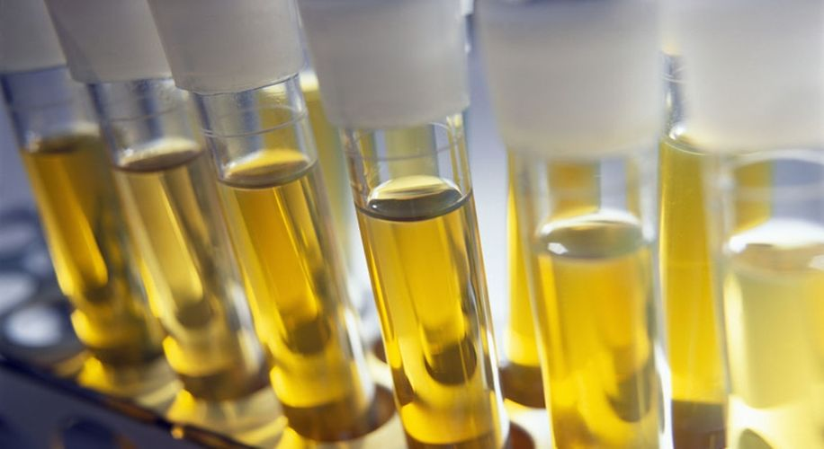 How Long Does Weed Stay in Your Urine?